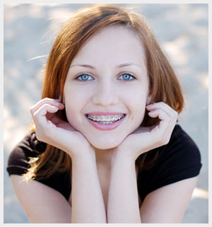 Braces with Fun Colors Example
