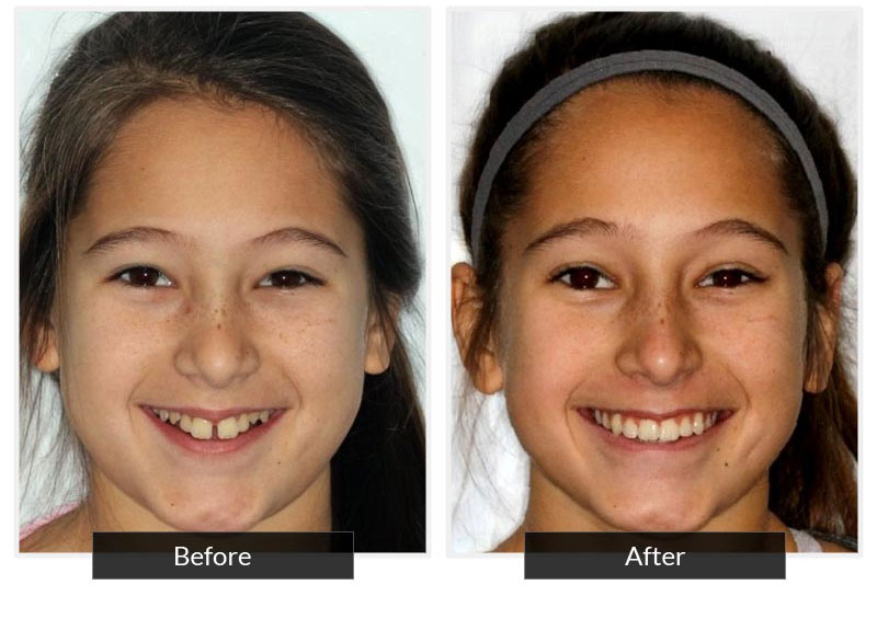 Before and After 9 | Testimonials