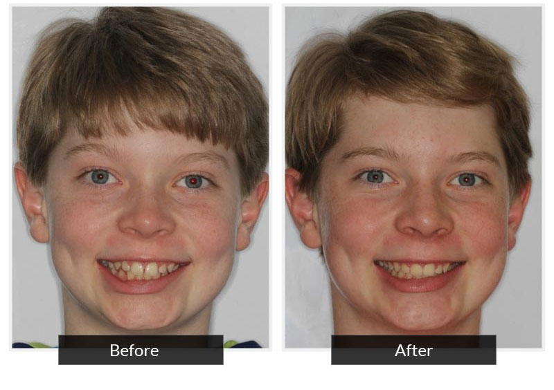 Before and After 7 | Testimonials