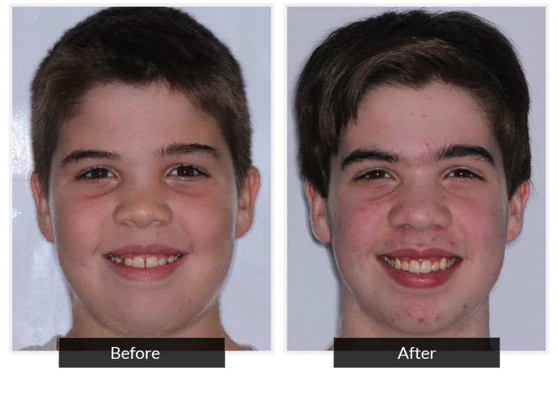Before and After 6 | Testimonials