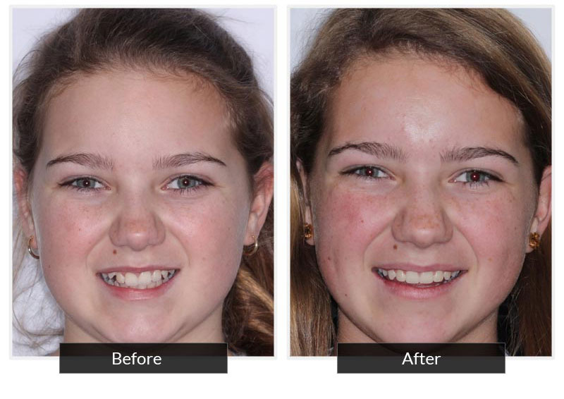 Before and After 4 | Testimonials