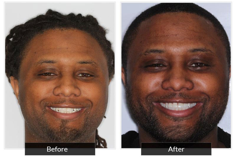 Before and After 3 | Testimonials