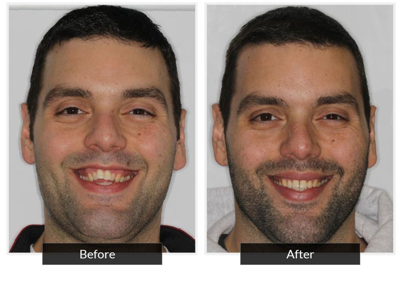 Before and After 2 | Testimonials