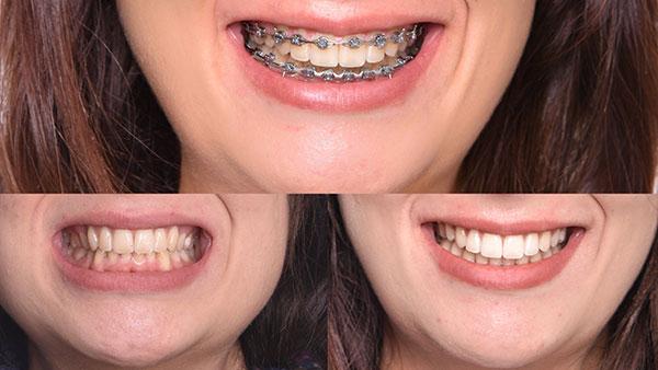 Smile Arc Technology Treatment Example