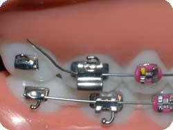 Loose Brace Wire